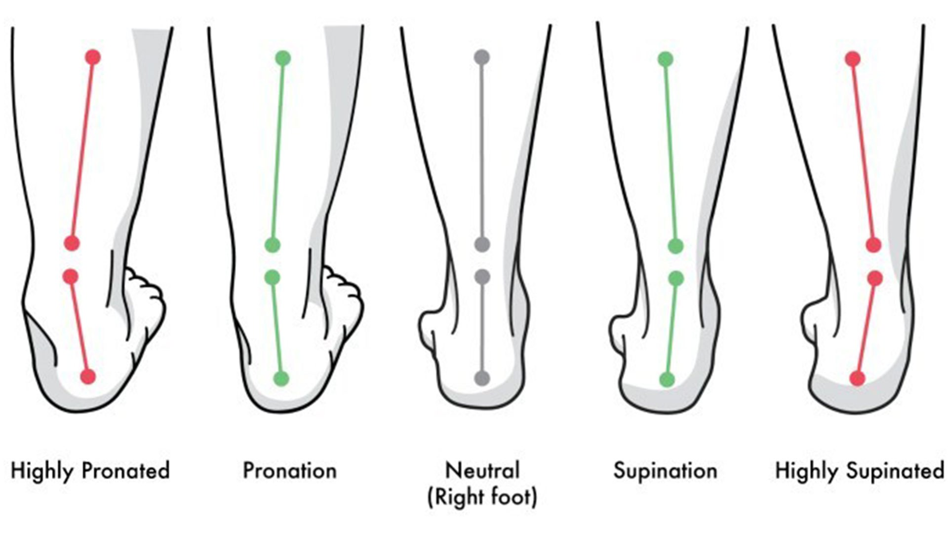 Pronation scale